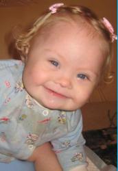 младенцы с синдромом дауна фото